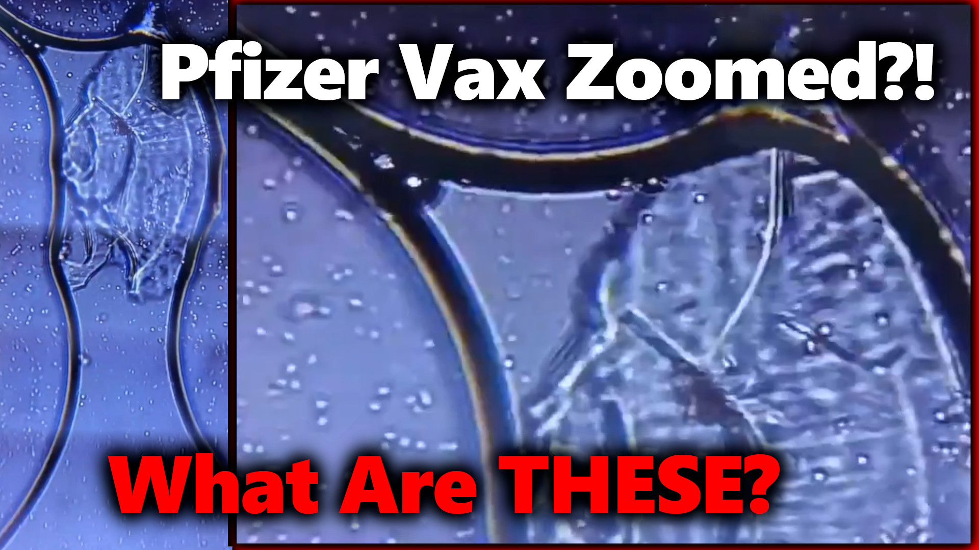 DISTURBING! Pfizer Vaccine Zoomed w/ Microscope?! Are Living Cells/ Organisms  Mixed In?!